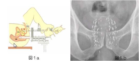前立腺密封小線源療法